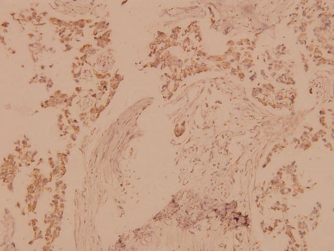 MST1/MST2 Antibody in Immunohistochemistry (Paraffin) (IHC (P))