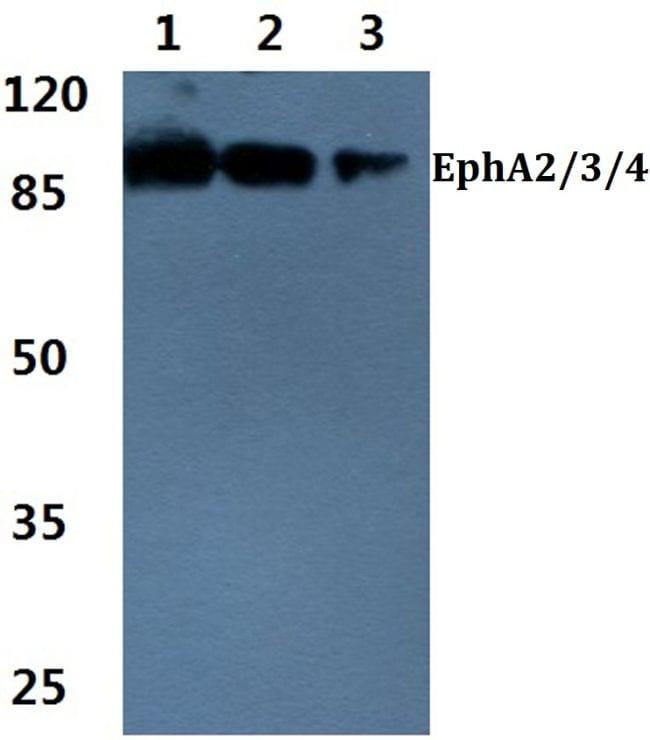 EphA2/EphA3/EphA4 Antibody in Western Blot (WB)