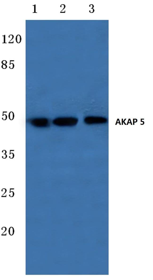 AKAP5 Antibody in Western Blot (WB)