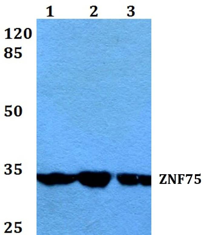 ZNF75D Antibody in Western Blot (WB)