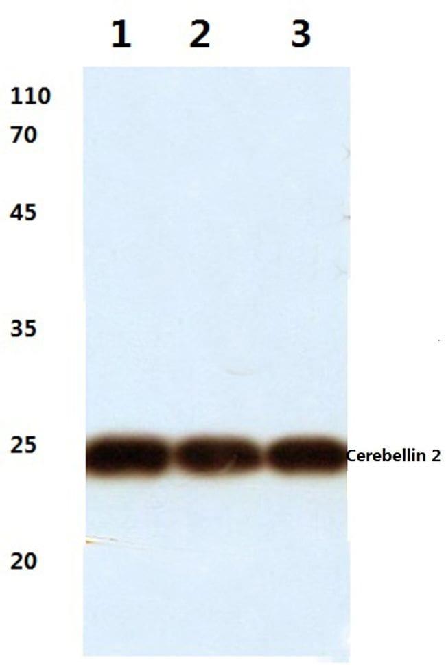 Cerebellin 2 Antibody in Western Blot (WB)