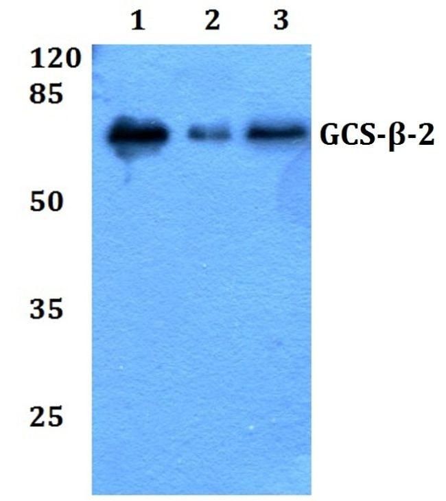 GUCY1B2 Antibody in Western Blot (WB)