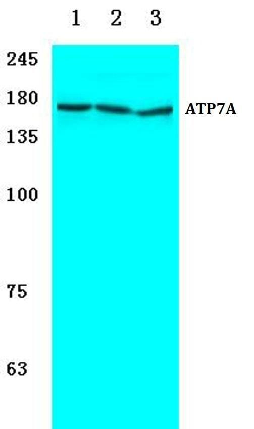 ATP7A Antibody in Western Blot (WB)