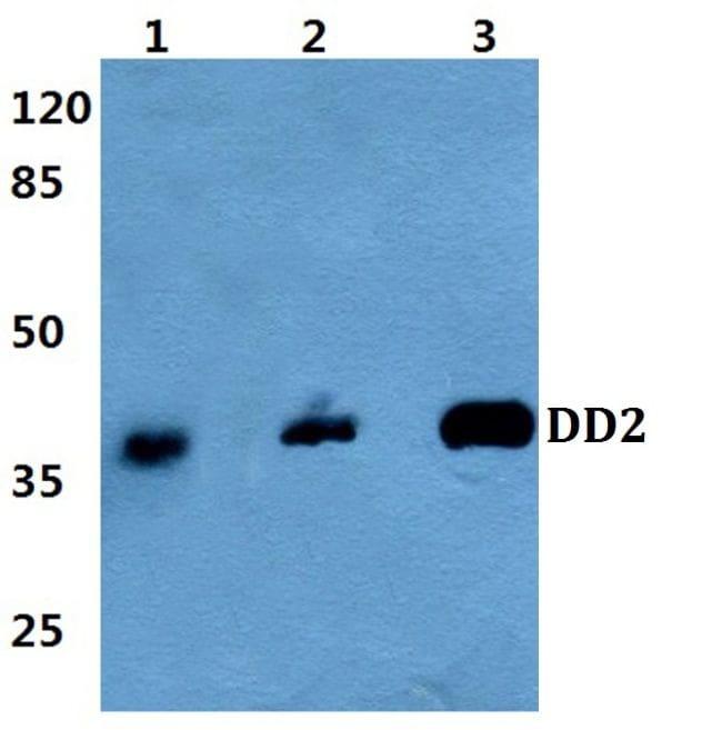 AKR1C2 Antibody in Western Blot (WB)