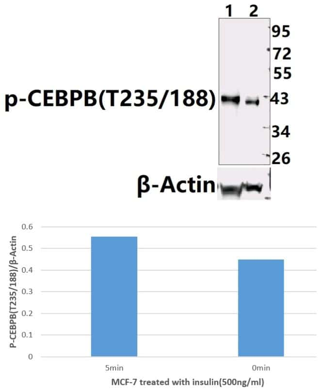 Phospho-C/EBP beta (Thr188, Thr235) Antibody in Western Blot (WB)