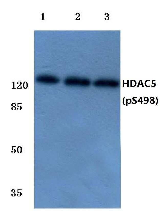 Phospho-HDAC5 (Ser498) Antibody in Western Blot (WB)