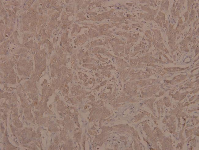 Phospho-JAK1 (Tyr1022) Antibody in Immunohistochemistry (Paraffin) (IHC (P))