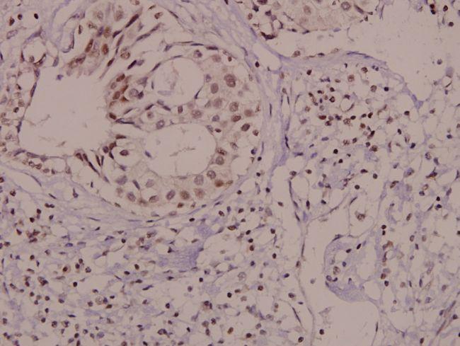 Phospho-VAV1 (Tyr174) Antibody in Immunohistochemistry (Paraffin) (IHC (P))