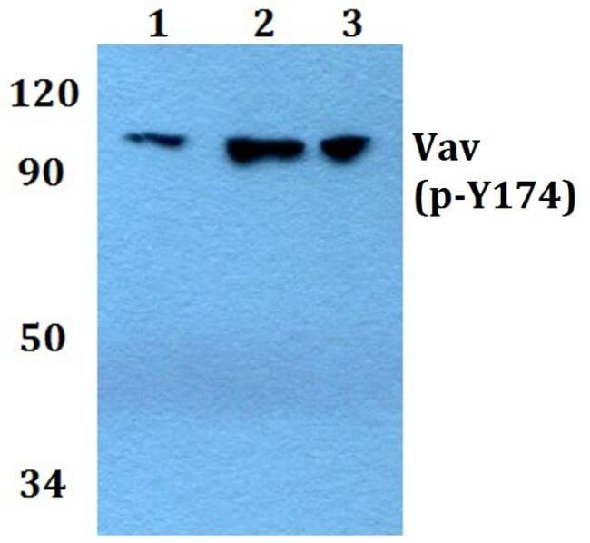 Phospho-VAV1 (Tyr174) Antibody in Western Blot (WB)