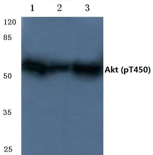 Phospho-AKT Pan (Thr450, Thr451, Thr447) Antibody in Western Blot (WB)