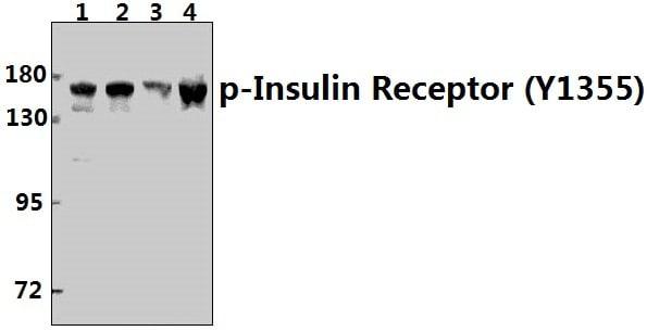 Phospho-INSR (Tyr1355) Antibody in Western Blot (WB)