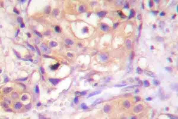 PKC Pan Antibody in Immunohistochemistry (Paraffin) (IHC (P))