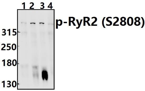 Phospho-RyR2 (Ser2808) Antibody in Western Blot (WB)