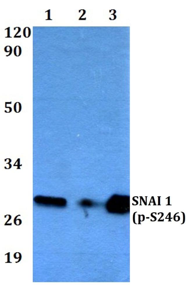 Phospho-SNAIL (Ser246) Antibody in Western Blot (WB)