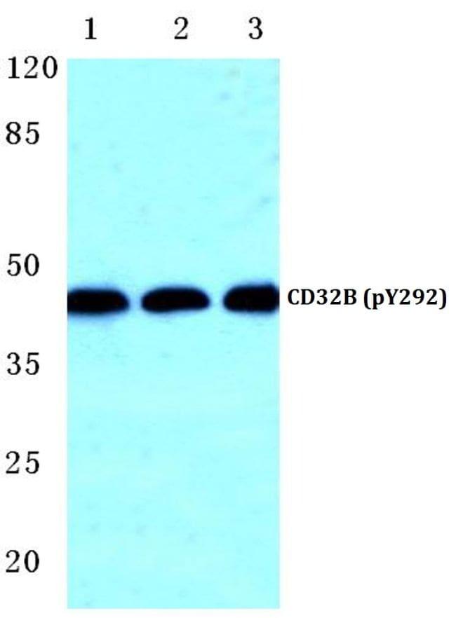 Phospho-FCGR2B (Tyr292) Antibody in Western Blot (WB)