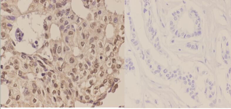Phospho-LKB1 (Ser428) Antibody in Immunohistochemistry (Paraffin) (IHC (P))