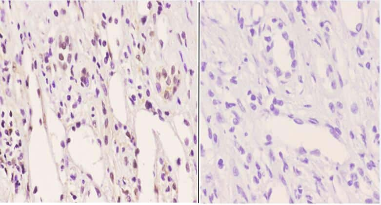 Phospho-PFKFB2 (Ser483) Antibody in Immunohistochemistry (Paraffin) (IHC (P))