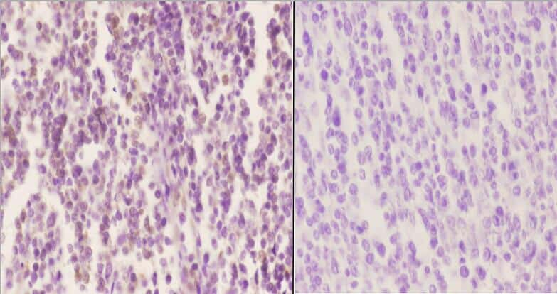 Phospho-SOX9 (Ser181) Antibody in Immunohistochemistry (Paraffin) (IHC (P))