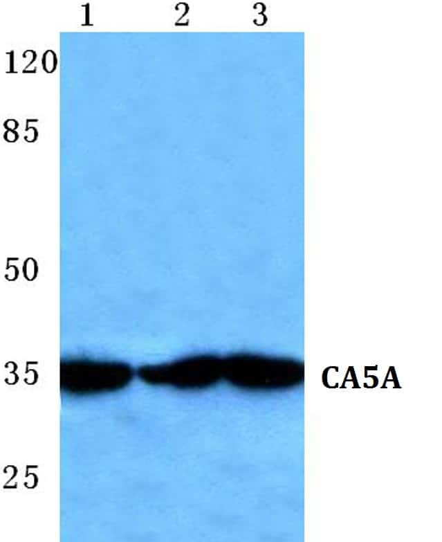 Carbonic Anhydrase VA Antibody in Western Blot (WB)