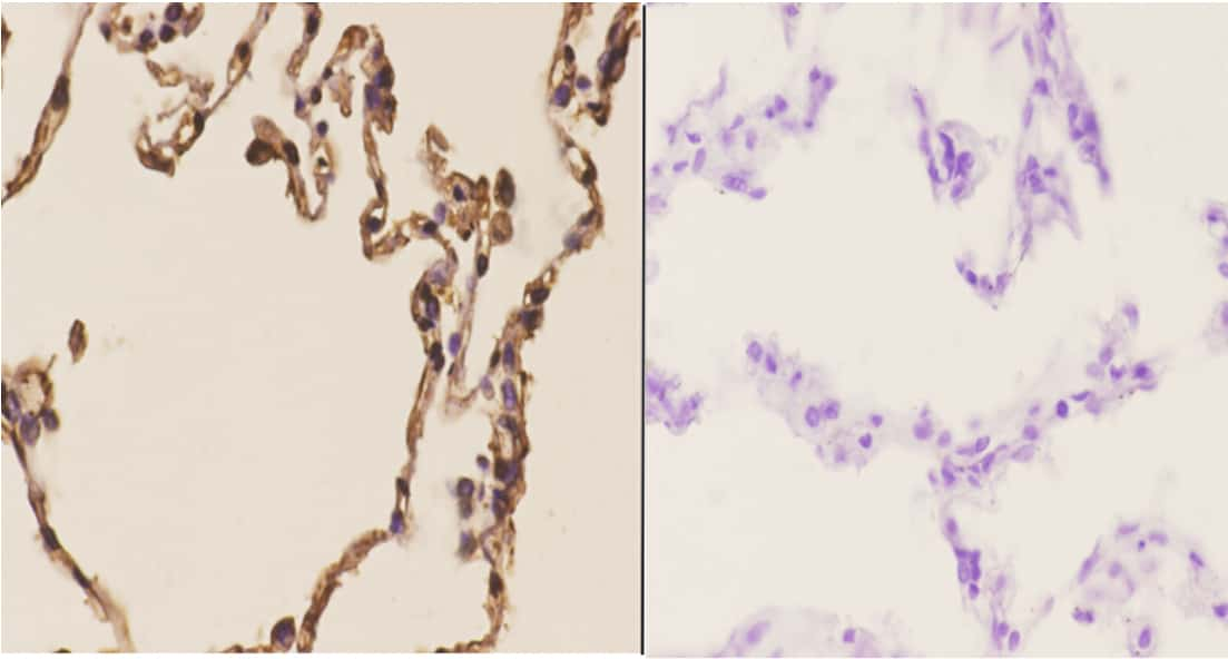 CHML Antibody in Immunohistochemistry (Paraffin) (IHC (P))