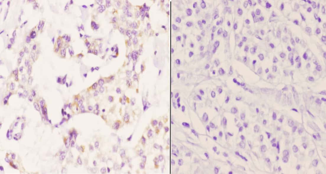 PTGR2 Antibody in Immunohistochemistry (Paraffin) (IHC (P))