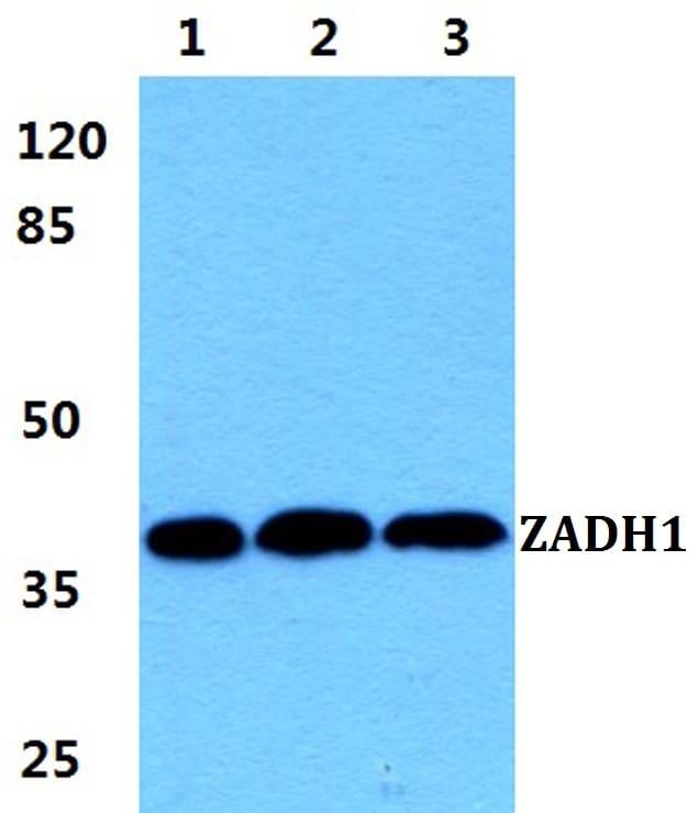 PTGR2 Antibody in Western Blot (WB)