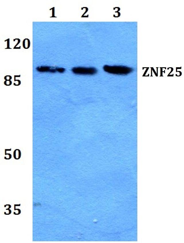 ZNF25 Antibody in Western Blot (WB)