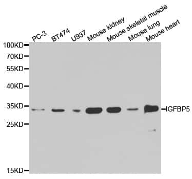 IGFBP5 Antibody in Western Blot (WB)