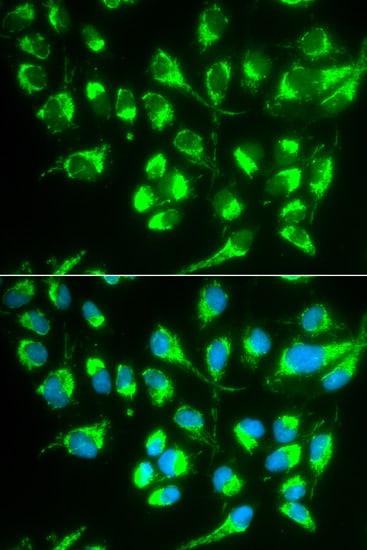SLC22A5 Antibody in Immunofluorescence (IF)