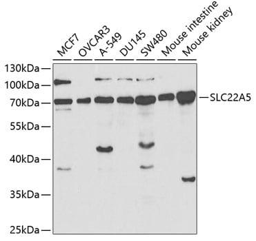 SLC22A5 Antibody in Western Blot (WB)