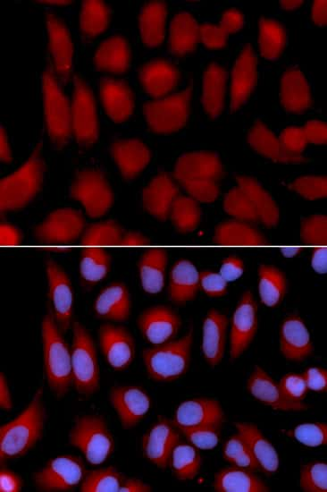 TAP2 Antibody in Immunofluorescence (IF)