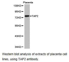 TAP2 Antibody in Western Blot (WB)