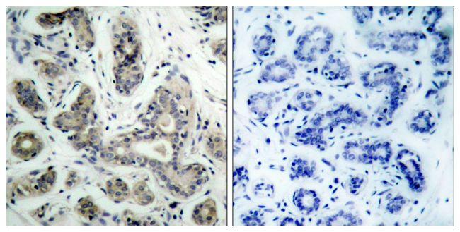 Phospho-BAD (Ser136) Antibody in Immunohistochemistry (Paraffin) (IHC (P))