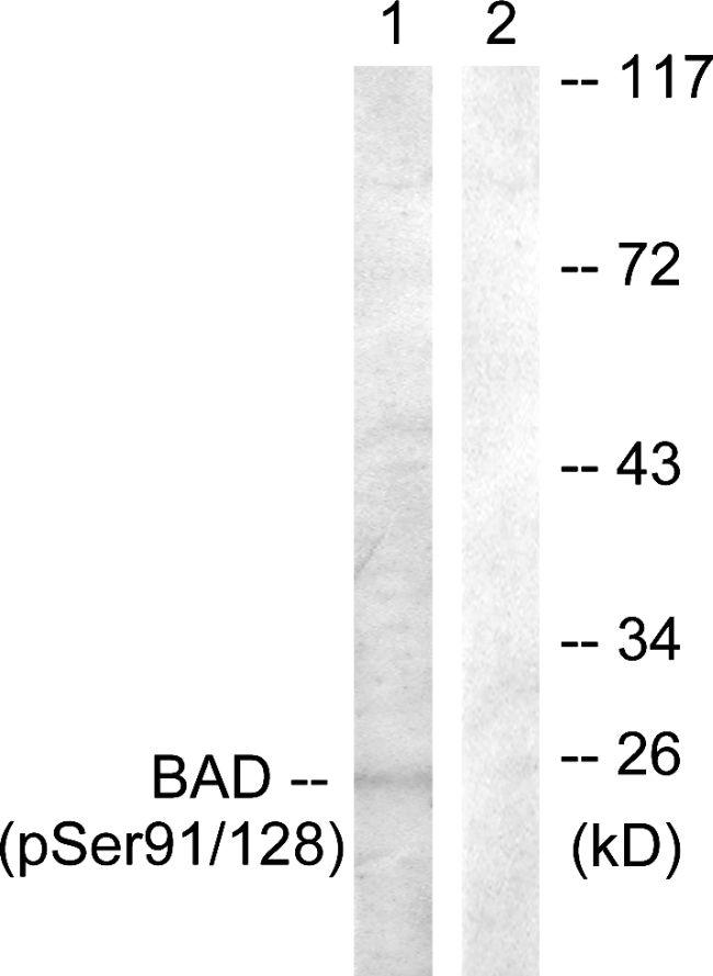 Phospho-BAD (Ser91, Ser128) Antibody in Western Blot (WB)