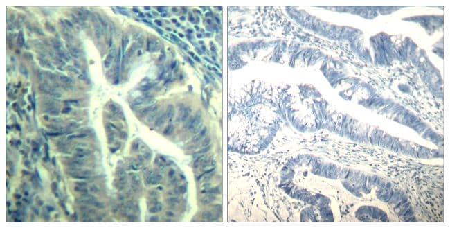 Phospho-CDK6 (Tyr24) Antibody in Immunohistochemistry (Paraffin) (IHC (P))