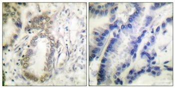 Phospho-C/EBP alpha (Ser21) Antibody in Immunohistochemistry (Paraffin) (IHC (P))