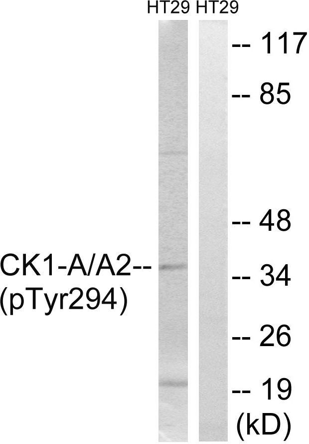 Phospho-CK1 alpha (Tyr294) Antibody in Western Blot (WB)