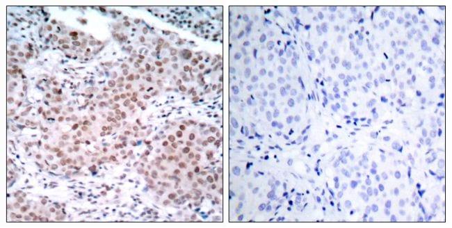 Phospho-Estrogen Receptor alpha (Ser104) Antibody in Immunohistochemistry (Paraffin) (IHC (P))