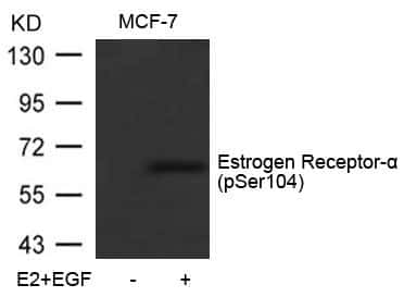 Phospho-Estrogen Receptor alpha (Ser104) Antibody in Western Blot (WB)