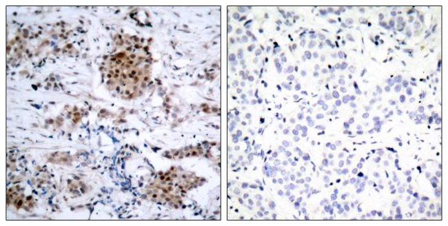 Phospho-Estrogen Receptor alpha (Ser167) Antibody in Immunohistochemistry (Paraffin) (IHC (P))