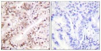 Phospho-Estrogen Receptor alpha (Tyr537) Antibody in Immunohistochemistry (Paraffin) (IHC (P))