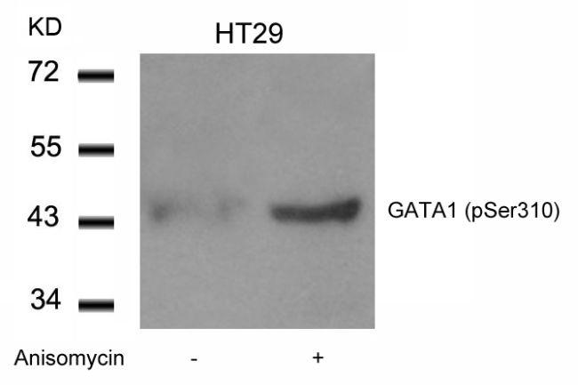 Phospho-GATA1 (Ser310) Antibody in Western Blot (WB)