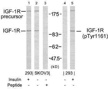 Phospho-IGF1R beta (Tyr1161) Antibody in Western Blot (WB)