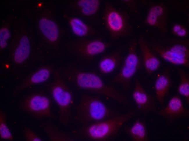 Phospho-MEF2A (Thr312) Antibody in Immunofluorescence (IF)