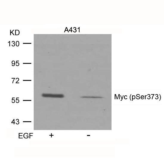 Phospho-c-Myc (Ser373) Antibody in Western Blot (WB)