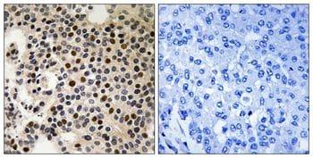 Phospho-PAK2 (Ser197) Antibody in Immunohistochemistry (Paraffin) (IHC (P))