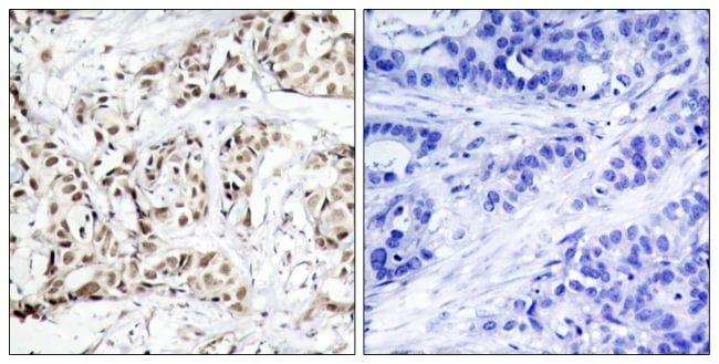 Phospho-JNK1 (Thr183) Antibody in Immunohistochemistry (Paraffin) (IHC (P))