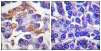 Phospho-c-Raf (Tyr341) Antibody in Immunohistochemistry (Paraffin) (IHC (P))
