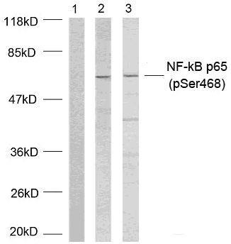 Phospho-NFkB p65 (Ser468) Antibody in Western Blot (WB)