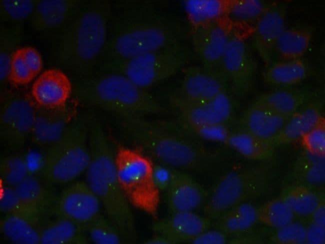 Phospho-NFkB p65 (Thr435) Antibody in Immunofluorescence (IF)